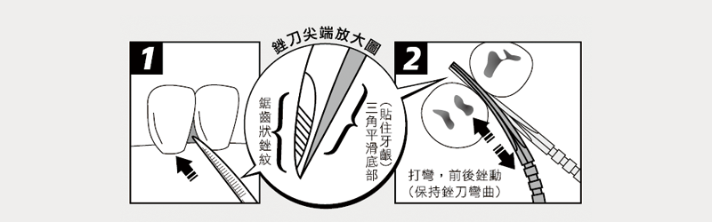 牙籤-銼刀尖端